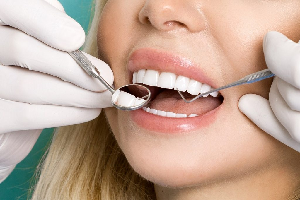 Woman white white teeth having a check up