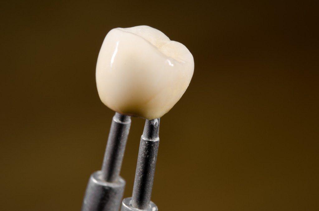 Ceramic dental crown