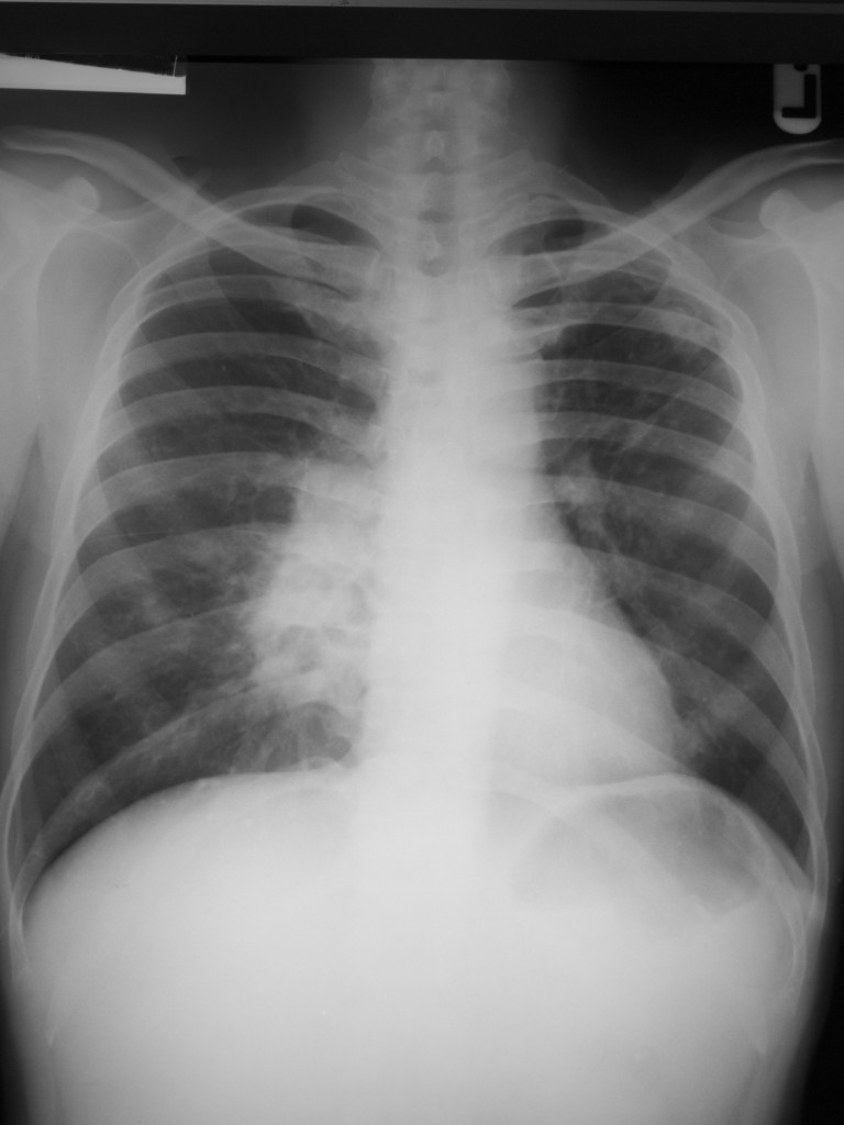 Lung xray photo