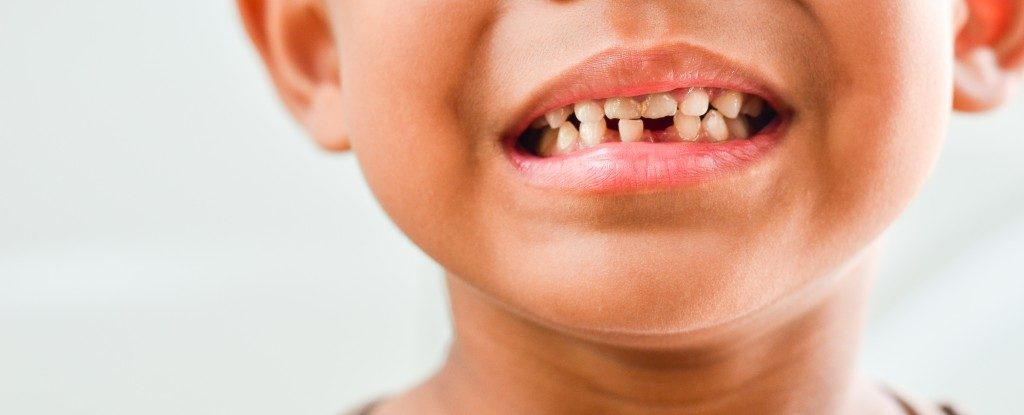 Tooth problems for Children