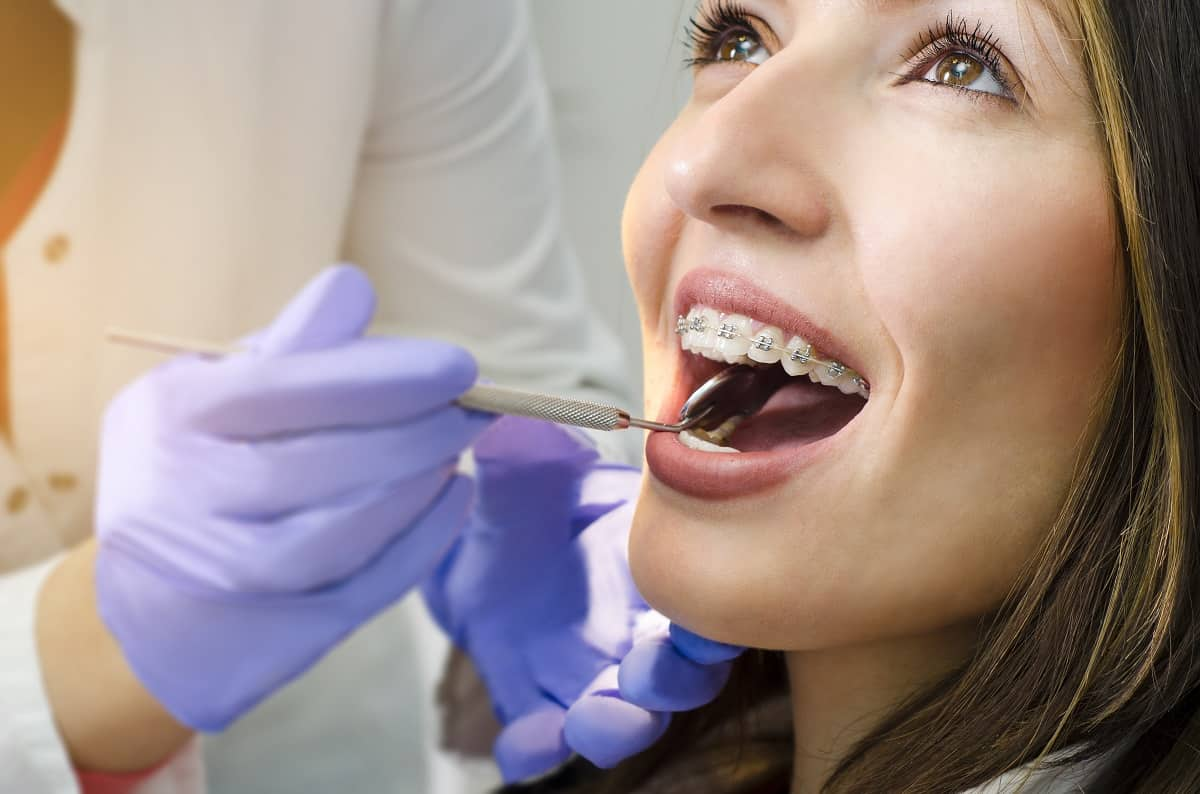 Close up of woman in dental braces check up