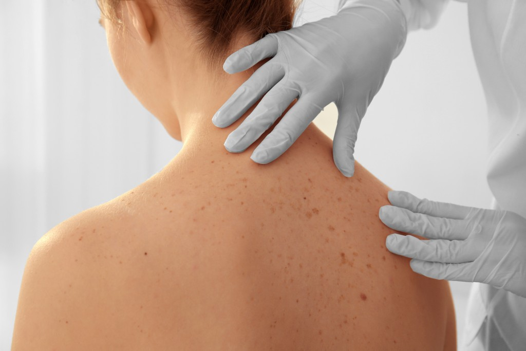 Doctor examining skin of patient