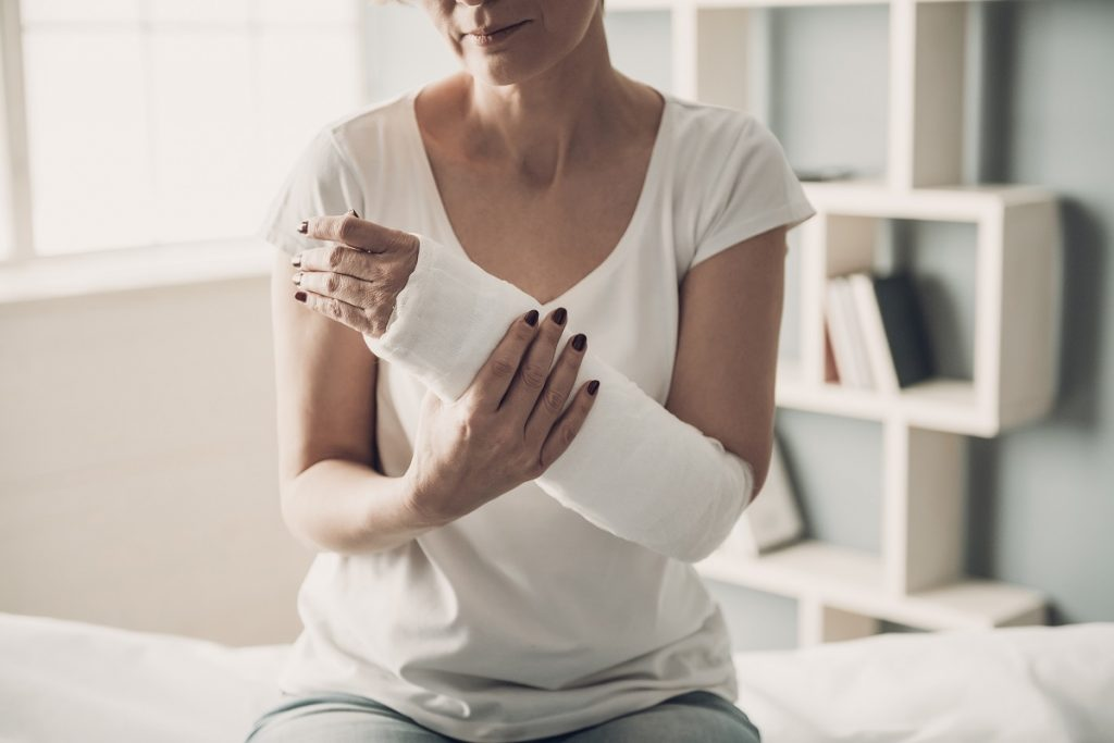 woman with bone fracture