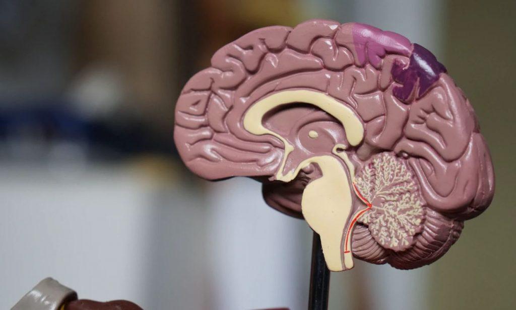 brain-figure